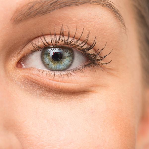 Cienie pod oczami kobiety są kwalifikowane do zabiegu karboksyterapii